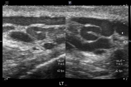 Trombosi di estremità di cima di sintomi di vene profonda